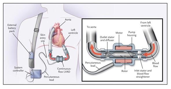 Representación de cómo se vería el Impulsor para bombas de sangre en el cuerpo. (Foto:http://www.nejm.org/doi/full/10.1056/NEJMoa067758)