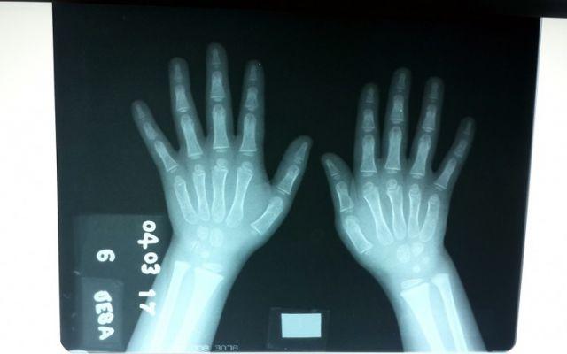 Computación avanzada ayudará a médicos a detectar trastornos de crecimiento a través de radiografías