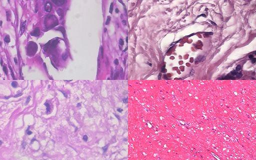 Imágenes de células de tejido de tumores de mama.