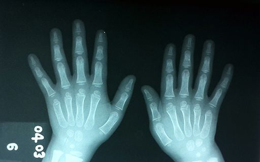 X-ray image of some hands.